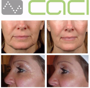 Treatments for the Face . CACI