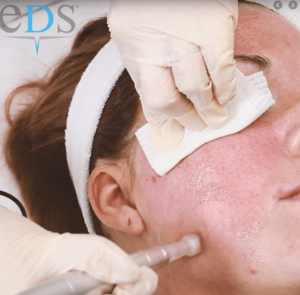 Clinical Treatments. skin needling