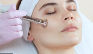 Treatments for the Face . microdermabrasion